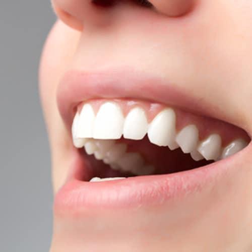 Dentifrici, investimenti milionari in pubblicità