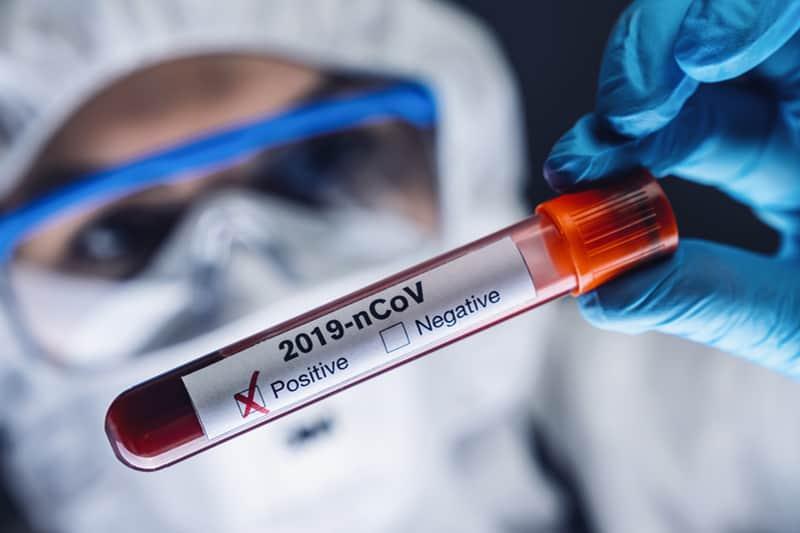 Covid-19: le aziende del settore medicale impegnano la produzione