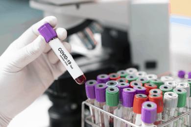 Vaccinazioni e test sierologici in farmacia, a che punto siamo
